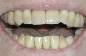Front teeth after Implant Repair