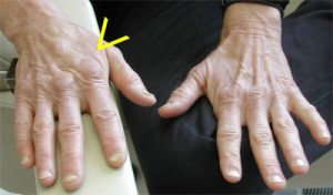 Calloused hand small bulimia