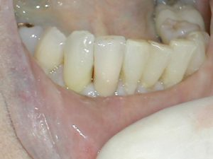 Image of Dental Crown on post web repaired