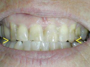 Cuspid clinched teeth
