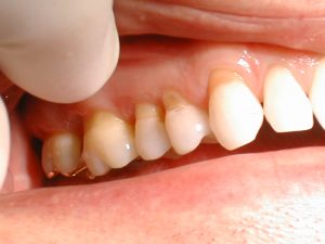 Showing a mouth with tooth abstraction