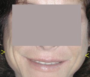 womans face distorted by bulimia