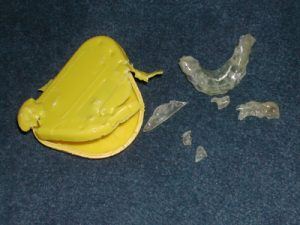 damaged and worn tooth guard