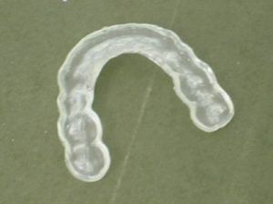 tooth guard to