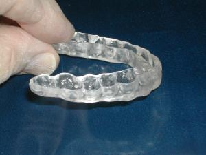 Custom Bite guard contour