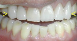Porcelain crown lifts repaired teeth