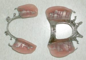 Upper and Lower Partials out of mouth