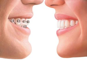 invisalign-facetoface1 with braces