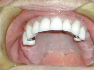 image of upper denture open mouth