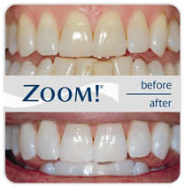 zoom-whitening before and after